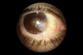 pterygium surgery - carnosidad